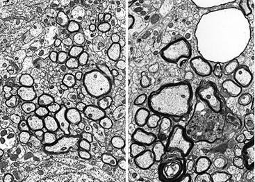 Neuron Axon Microscope - Bing images