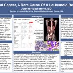 """Cervical Cancer, A Rare Cause of a Leukemia Reaction"" Jennifer Maccarone, MD"